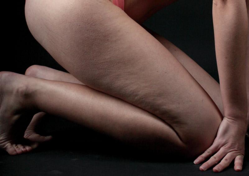 women cellulite