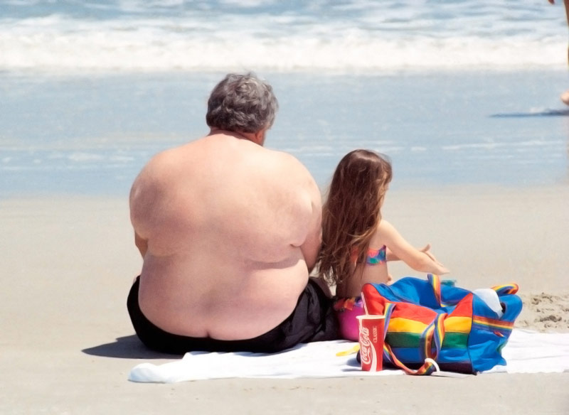 obesity men on the beach prostate cancer