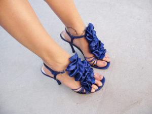 varicose veins women heels