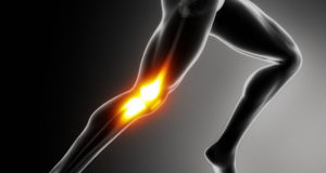 running knee