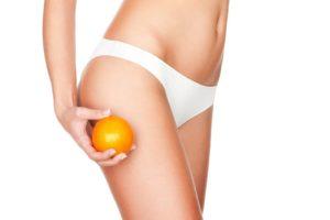 cellulite women